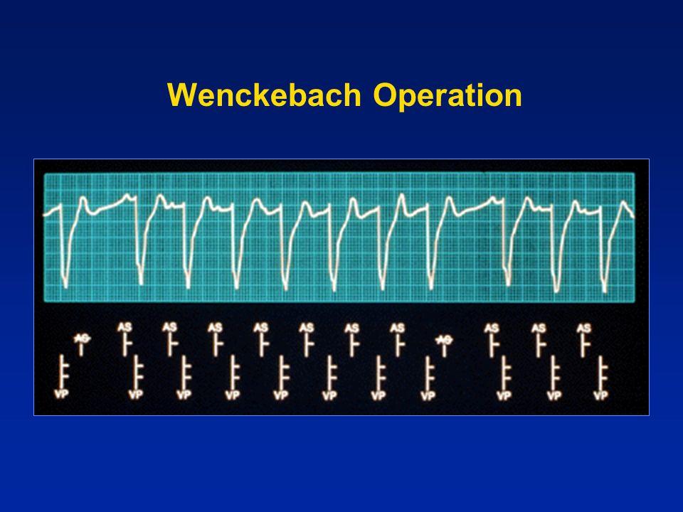 Wenckebach Operation