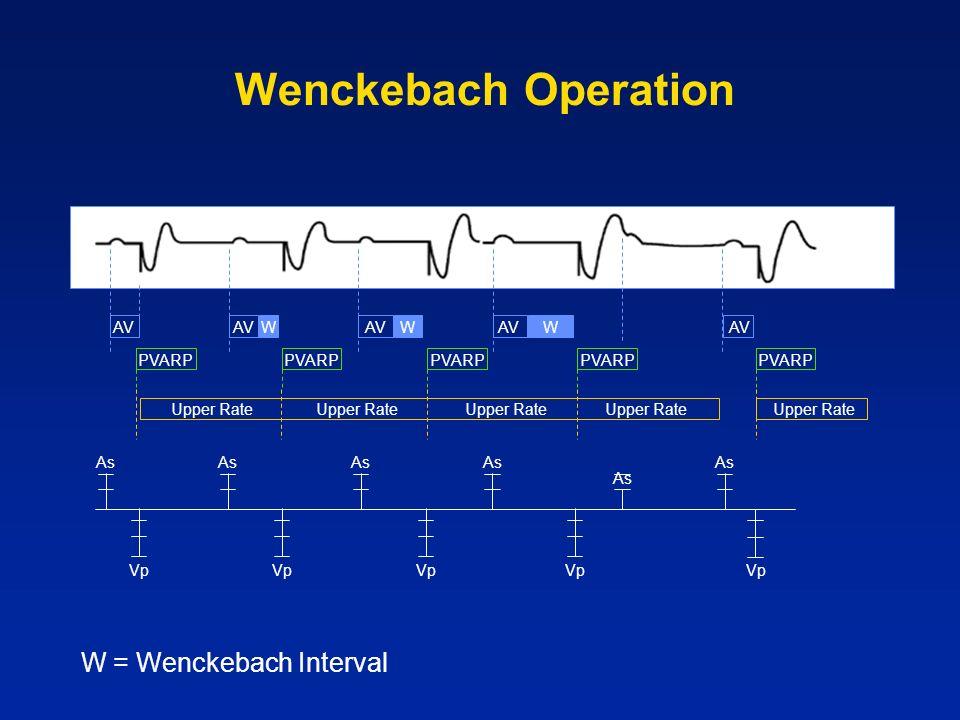 Wenckebach Operation W = Wenckebach Interval AV AV W AV W AV W AV