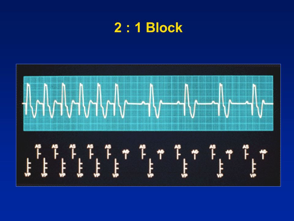2 : 1 Block
