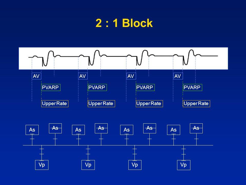 2 : 1 Block As As As As As As As As Vp Vp Vp Vp AV AV AV AV PVARP