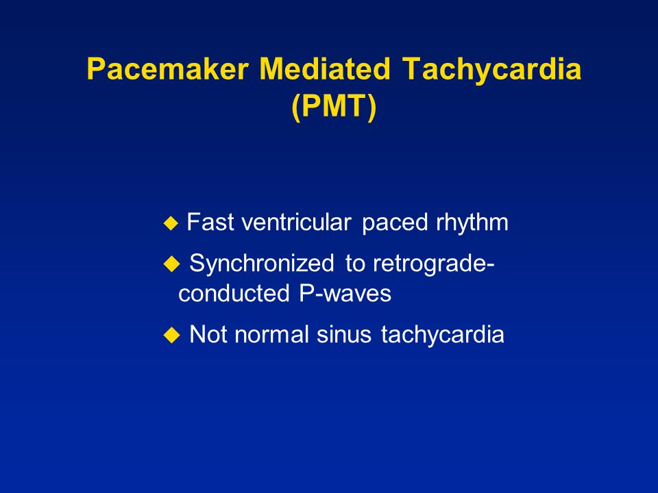 Pacemaker Mediated Tachycardia (PMT)