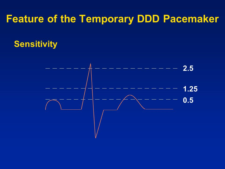 Feature of the Temporary DDD Pacemaker
