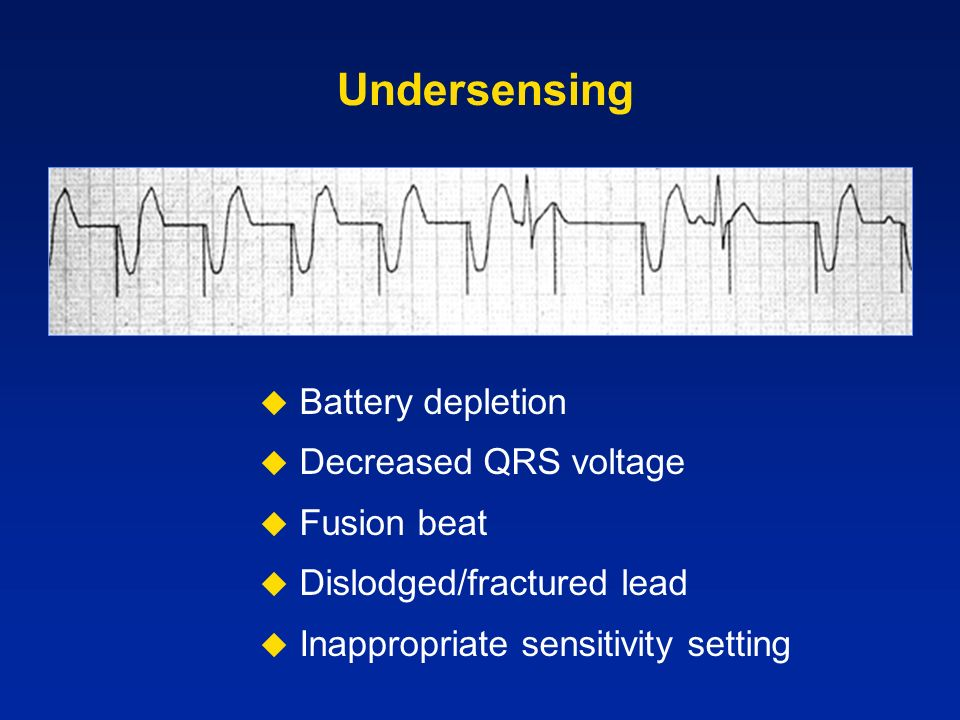 Undersensing Battery depletion Decreased QRS voltage Fusion beat