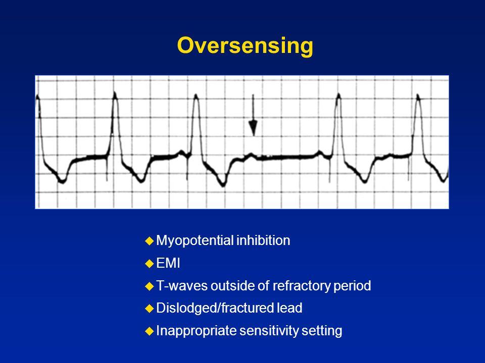 Oversensing Myopotential inhibition EMI