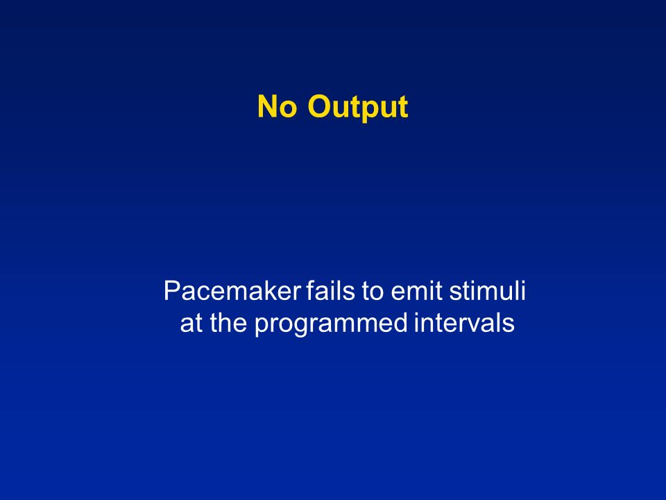 No Output Pacemaker fails to emit stimuli at the programmed intervals