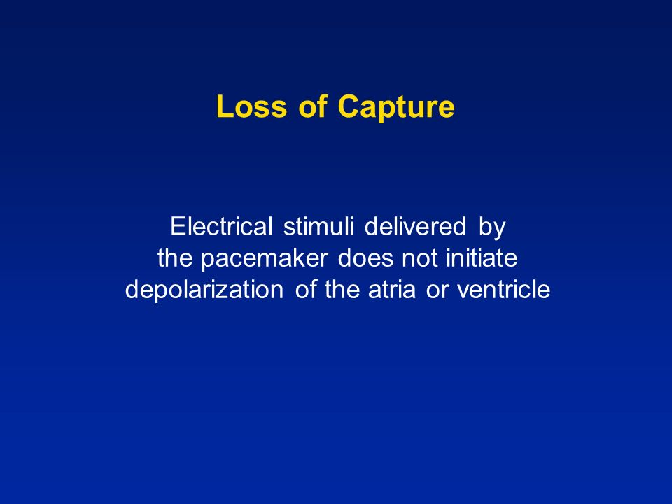 Loss of Capture Electrical stimuli delivered by the pacemaker does not initiate depolarization of the atria or ventricle.