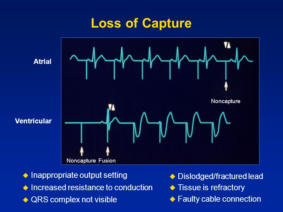 Loss of Capture Inappropriate output setting Dislodged/fractured lead