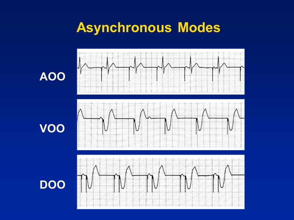 Asynchronous Modes AOO VOO DOO
