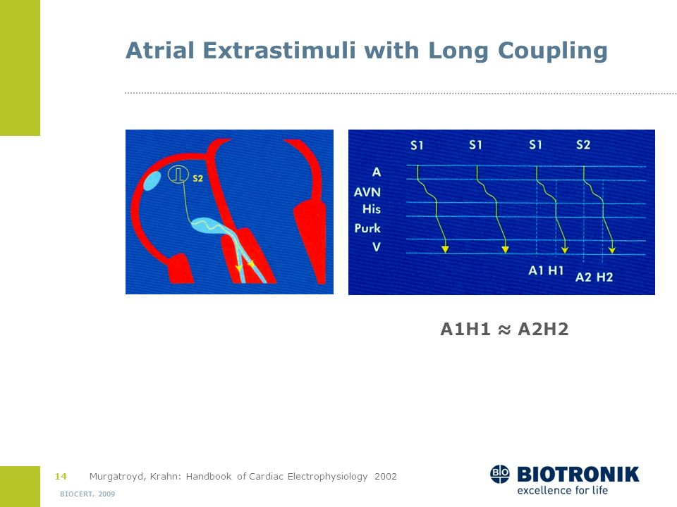Atrial Extrastimuli with Long Coupling