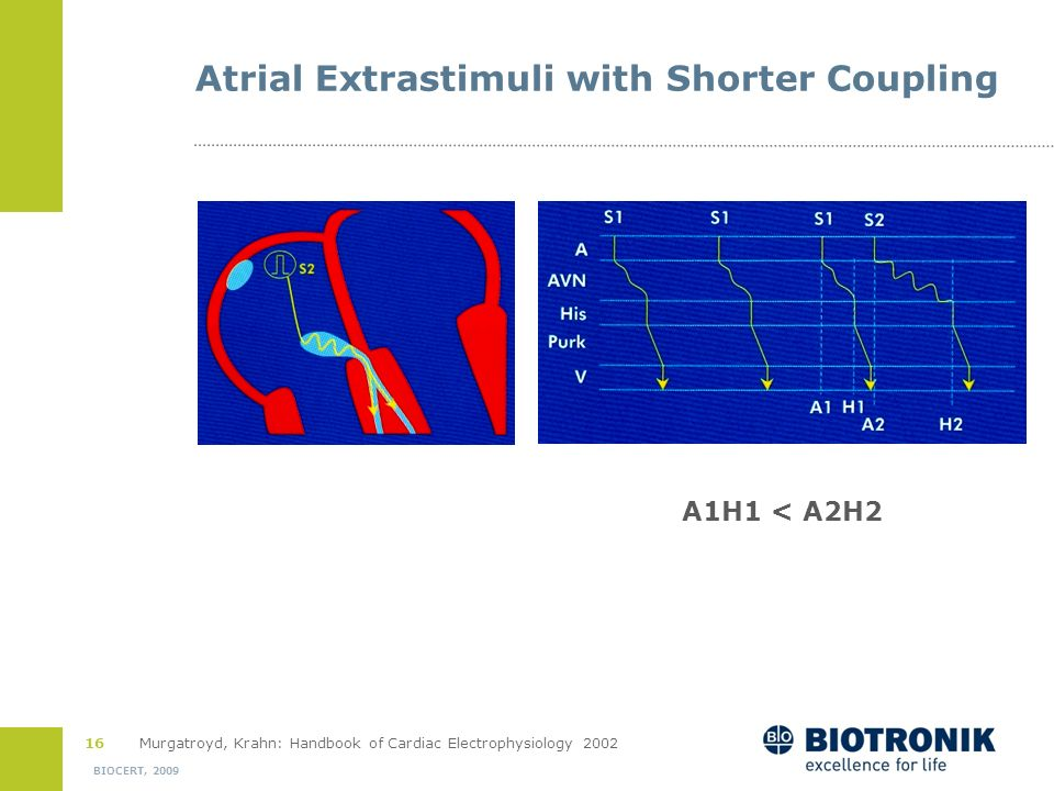 Atrial Extrastimuli with Shorter Coupling