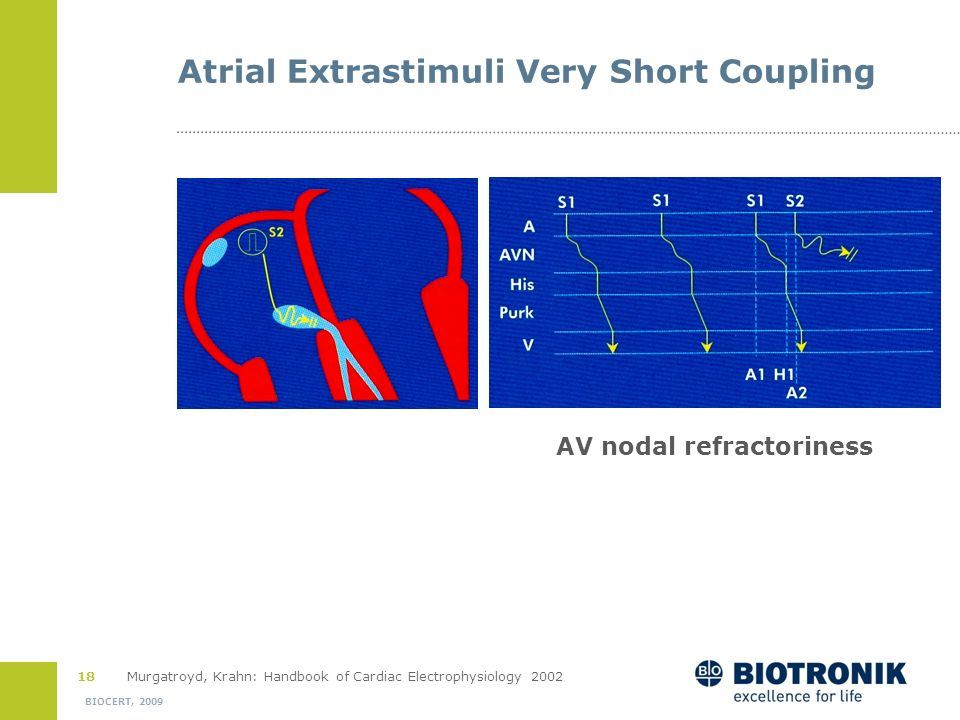 Atrial Extrastimuli Very Short Coupling