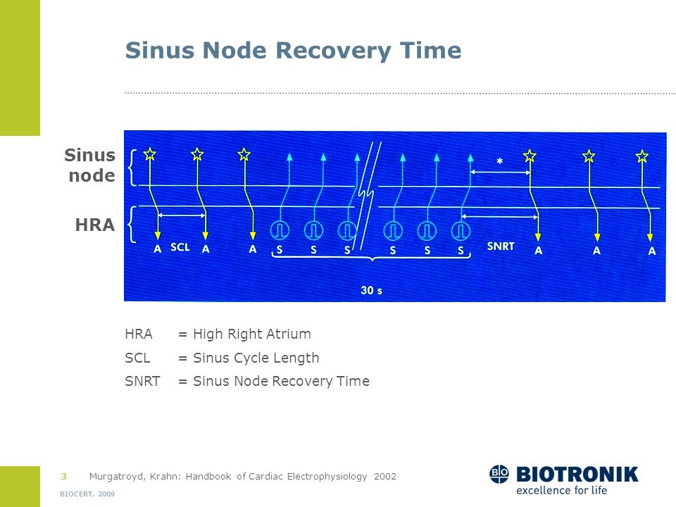Sinus Node Recovery Time