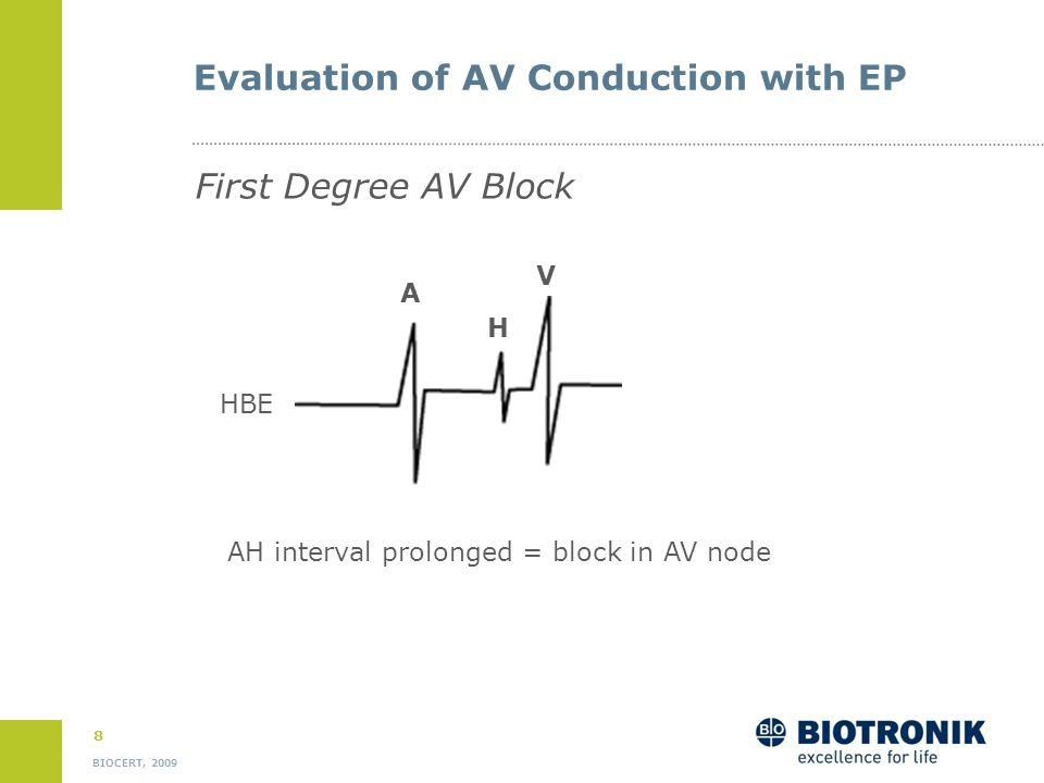 Evaluation of AV Conduction with EP