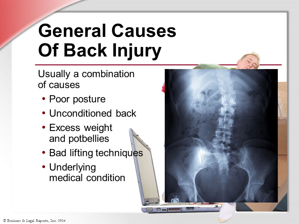 General Causes Of Back Injury