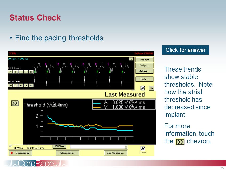 Status Check Find the pacing thresholds