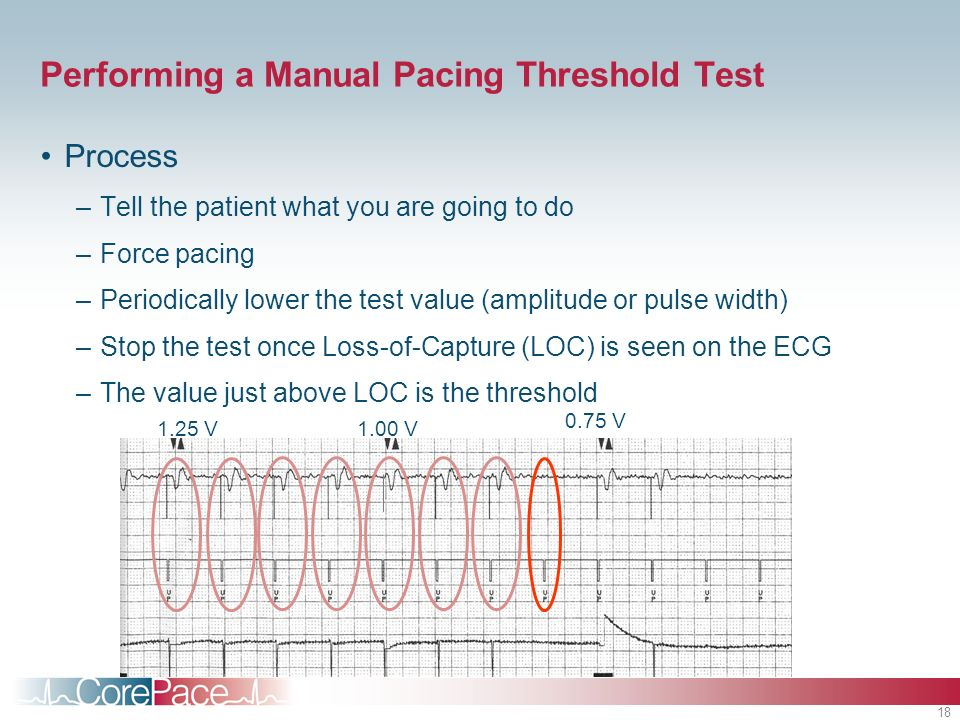Performing a Manual Pacing Threshold Test