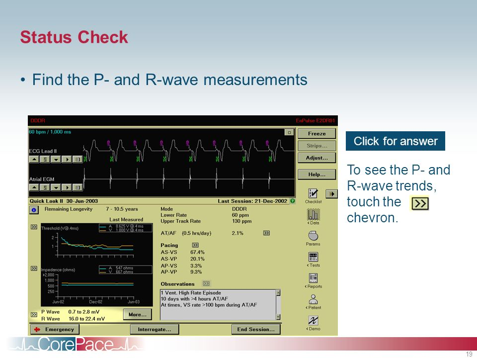 Status Check Find the P- and R-wave measurements