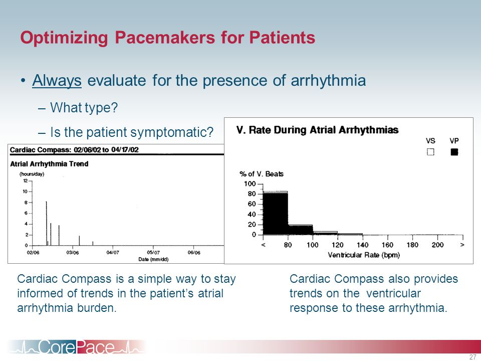 Optimizing Pacemakers for Patients