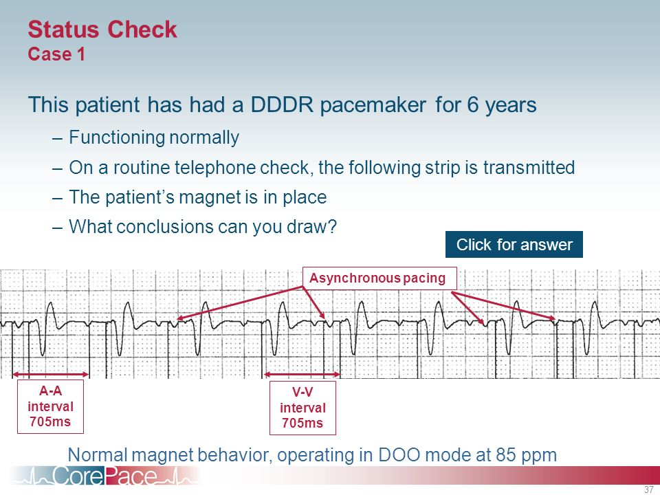 Status Check Case 1 This patient has had a DDDR pacemaker for 6 years