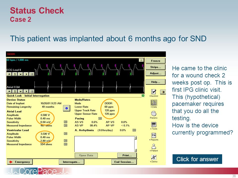 Status Check Case 2 This patient was implanted about 6 months ago for SND.