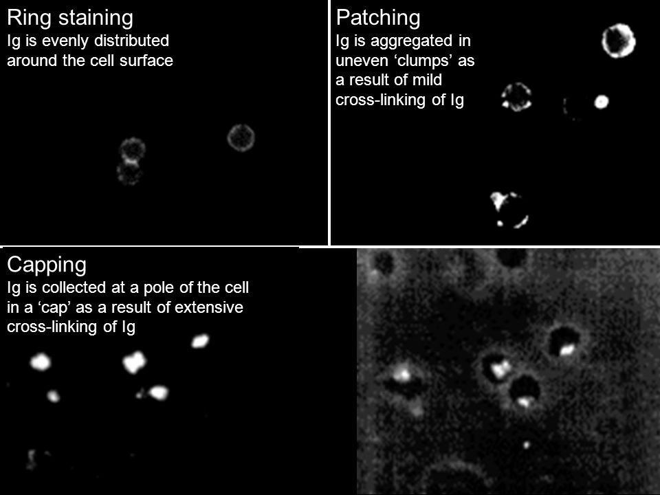 Ring staining Patching Capping Ig is evenly distributed