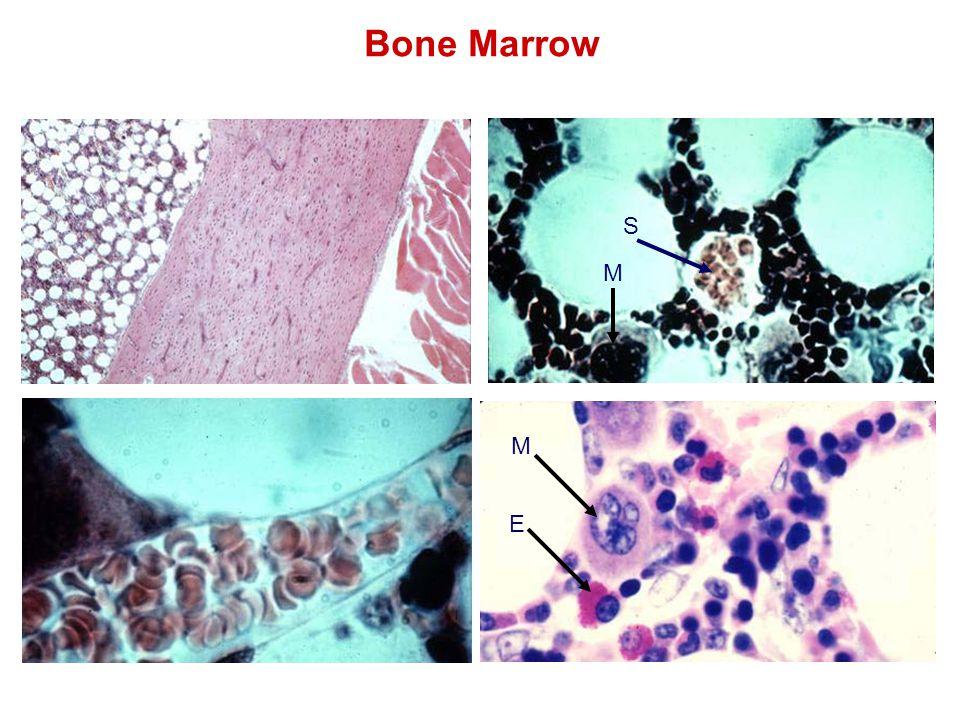 Bone Marrow M S E M