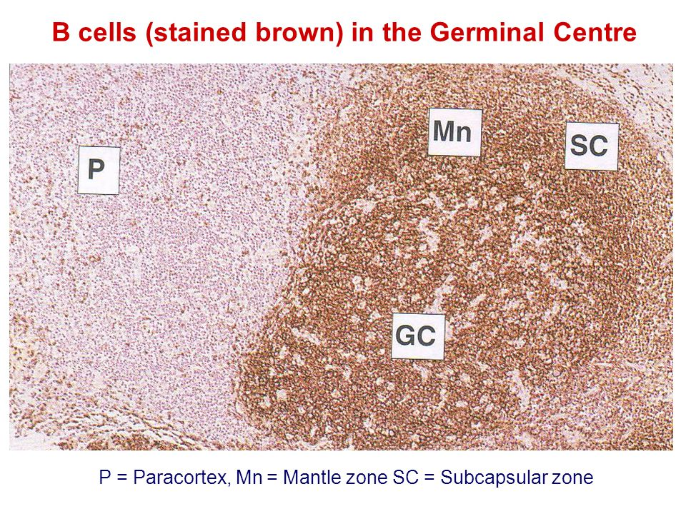B cells (stained brown) in the Germinal Centre