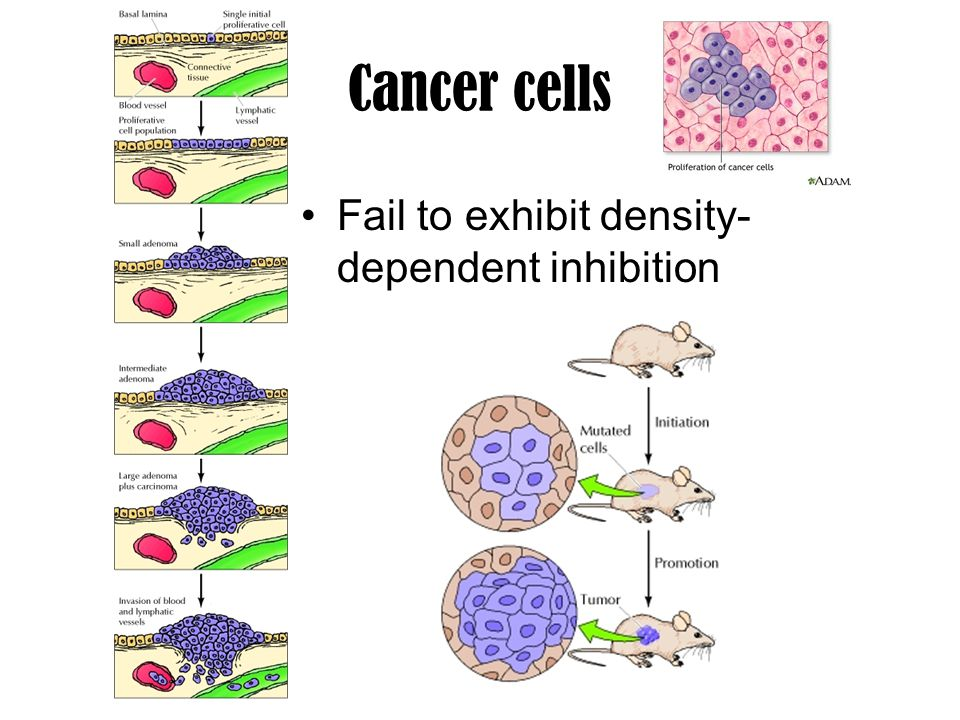 Cancer cells Fail to exhibit density-dependent inhibition