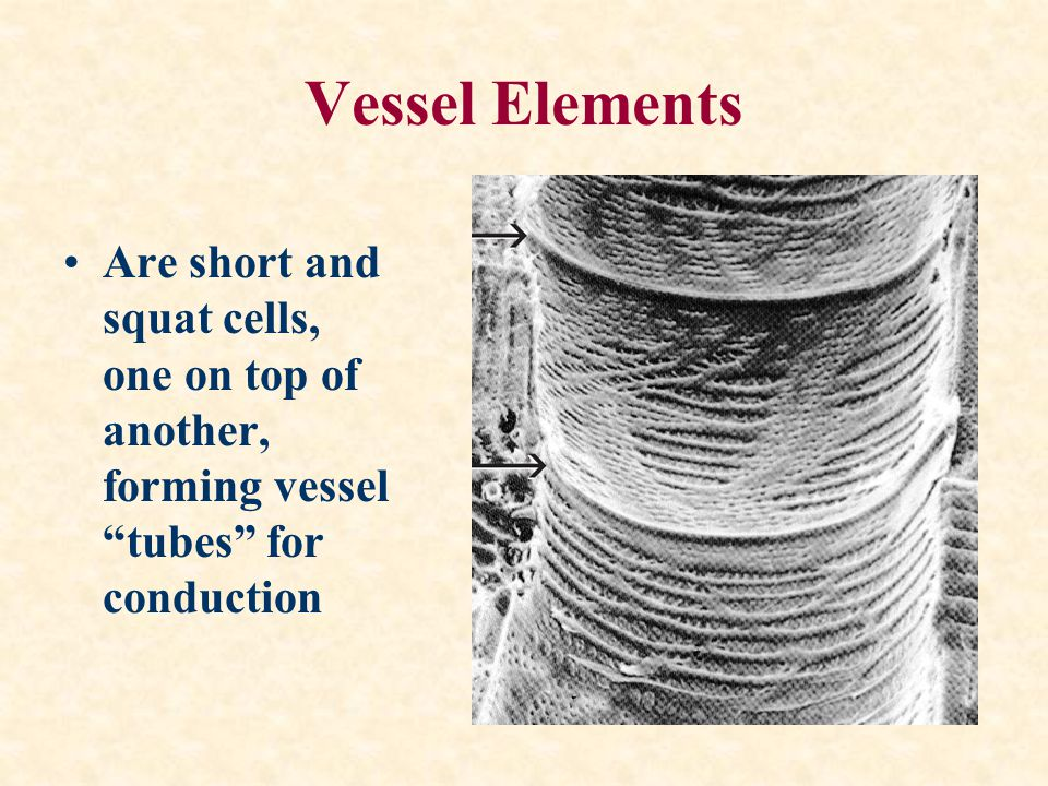 Vessel Elements Are short and squat cells, one on top of another, forming vessel tubes for conduction.
