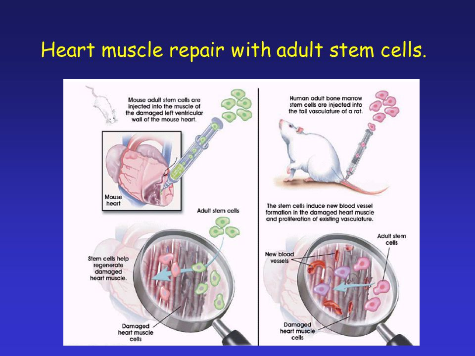 Heart muscle repair with adult stem cells.
