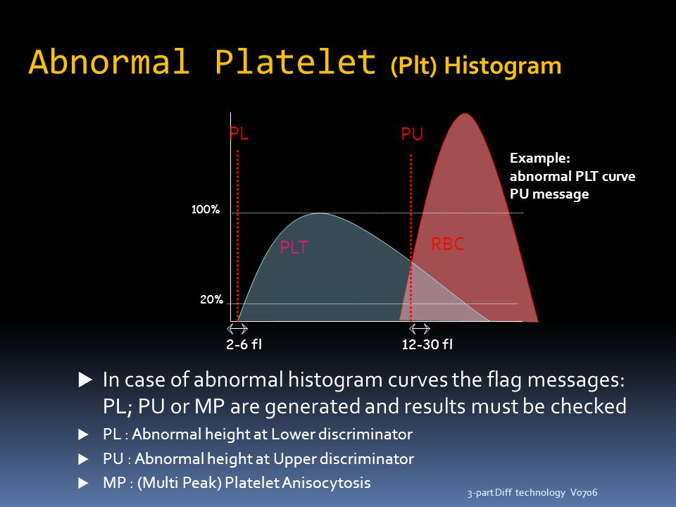 Abnormal Platelet (Plt) Histogram