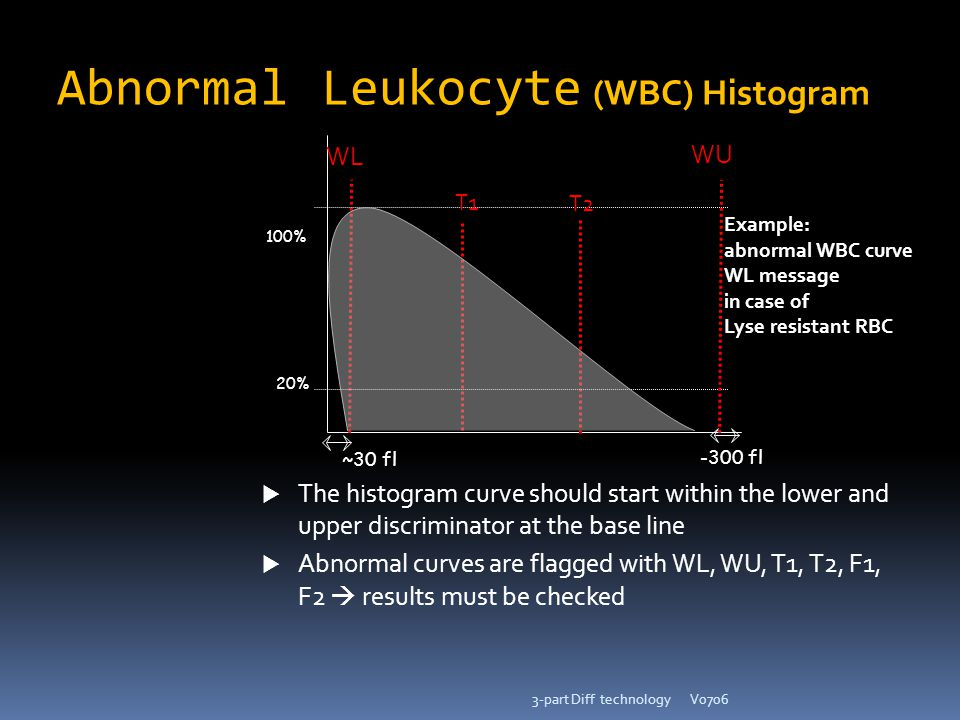 Abnormal Leukocyte (WBC) Histogram