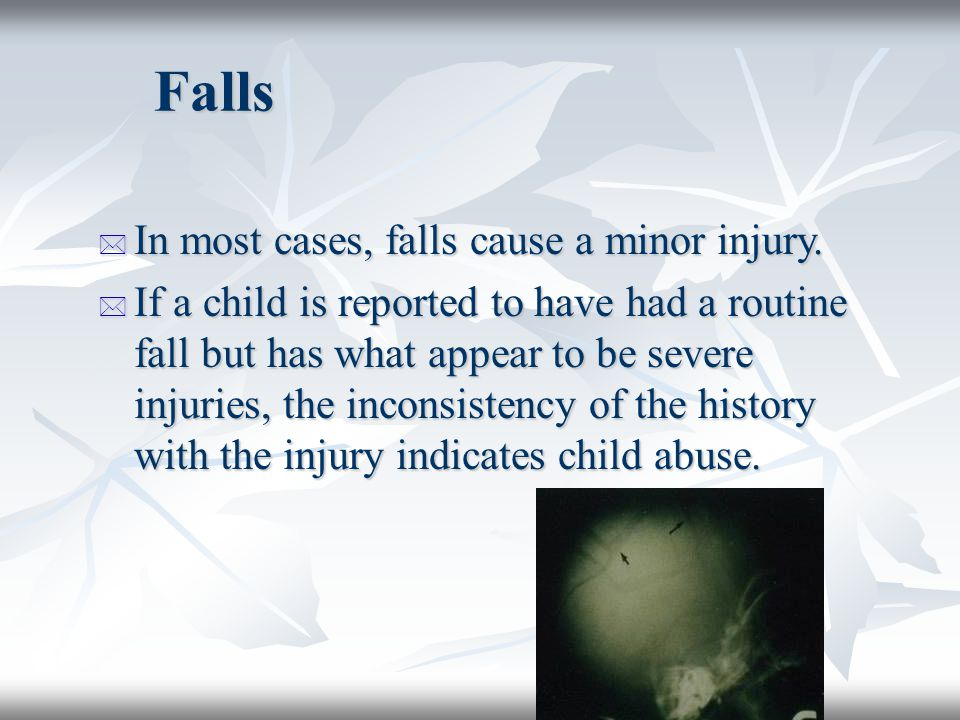 Falls In most cases, falls cause a minor injury.