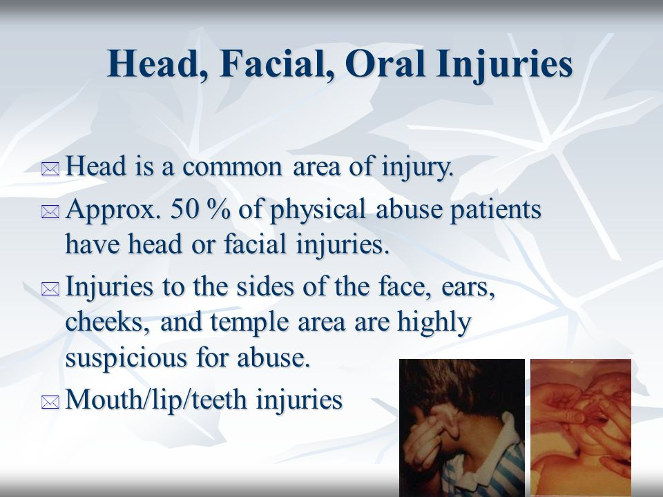 Head, Facial, Oral Injuries