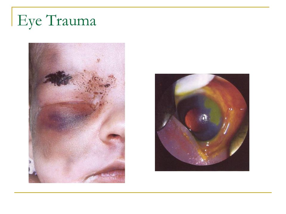 Eye Trauma