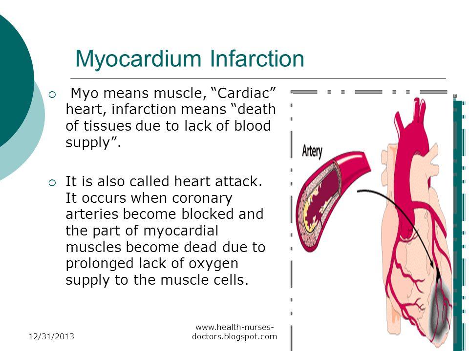 Myocardium Infarction