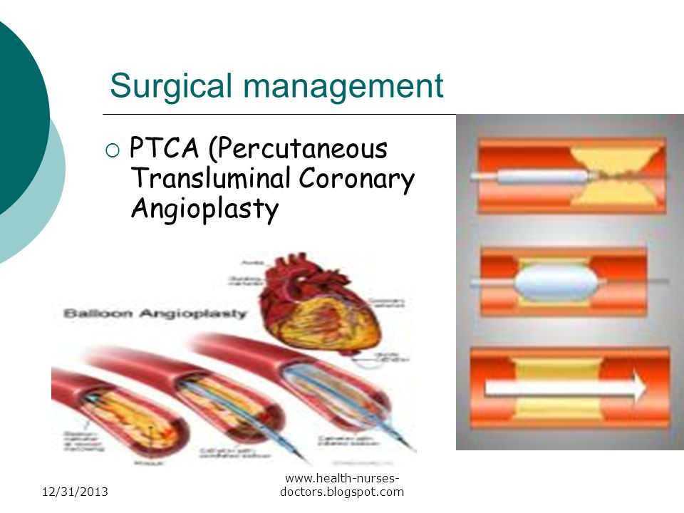 Surgical management PTCA (Percutaneous Transluminal Coronary Angioplasty.