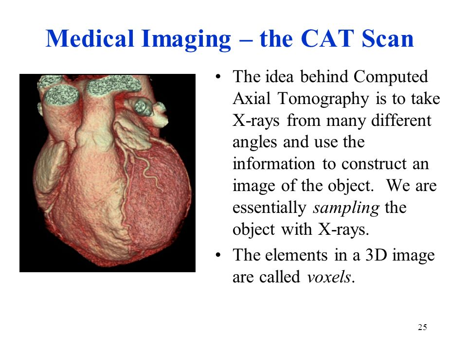 Medical Imaging – the CAT Scan