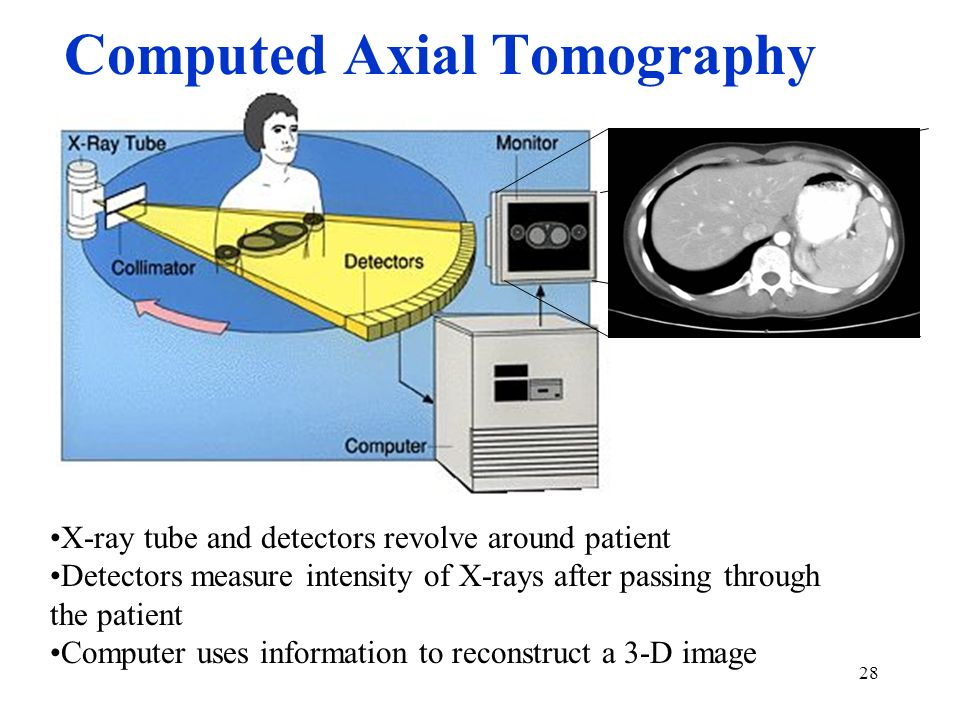 Computed Axial Tomography