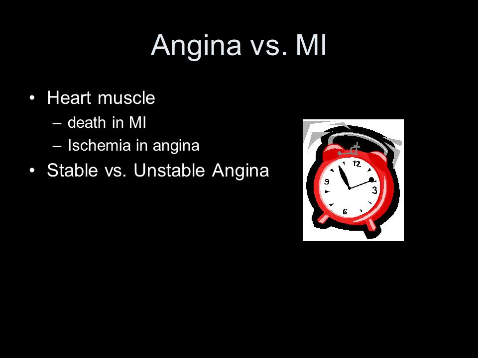 Angina vs. MI Heart muscle Stable vs. Unstable Angina death in MI