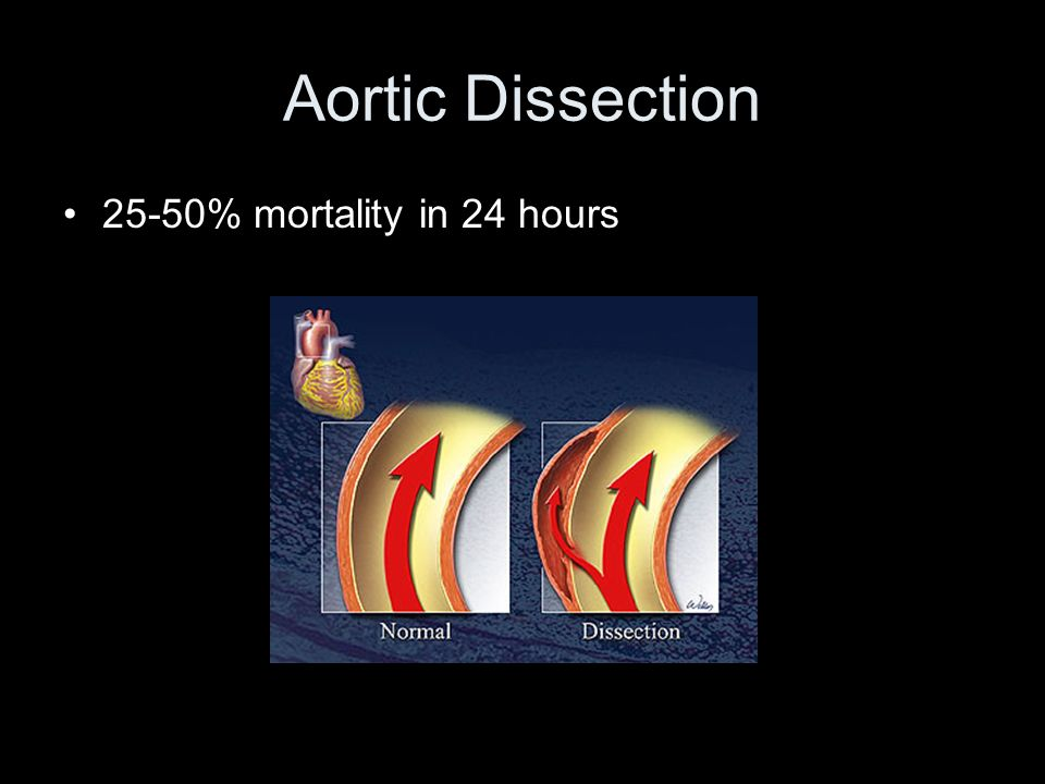Aortic Dissection 25-50% mortality in 24 hours