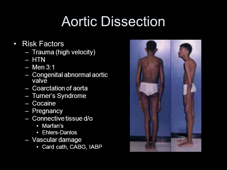 Aortic Dissection Risk Factors Trauma (high velocity) HTN Men 3:1