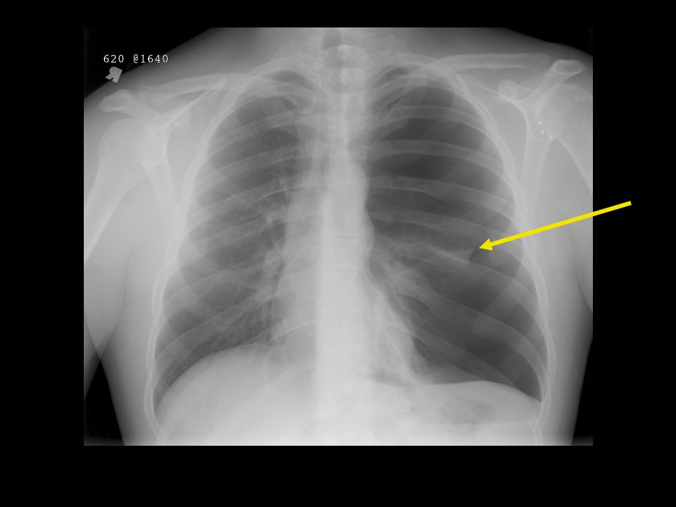 This patient actually drove himself to the ED from home after having an outpatient CXR for progressive SOB over a month….Actually shows a tension ptx by film with L ptx and shift of mediastinum to the right…but he was stone cold STABLE.