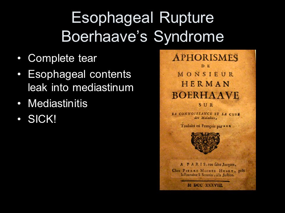 Esophageal Rupture Boerhaave's Syndrome