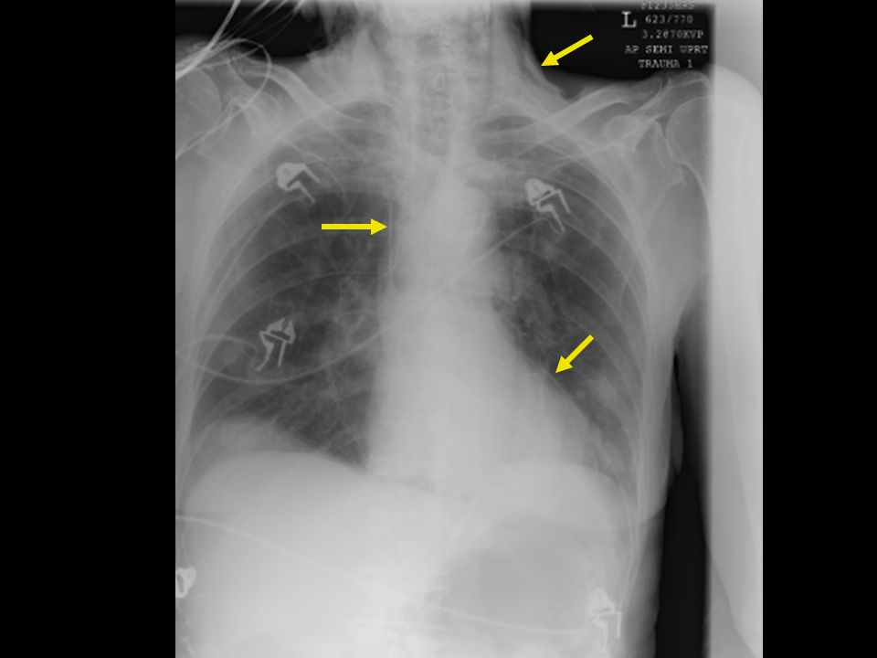 Elderly female presented with severe chest and back pain after forceful vomiting.