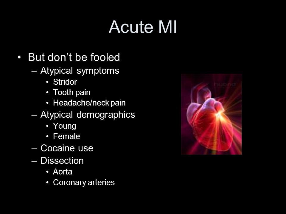 Acute MI But don't be fooled Atypical symptoms Atypical demographics