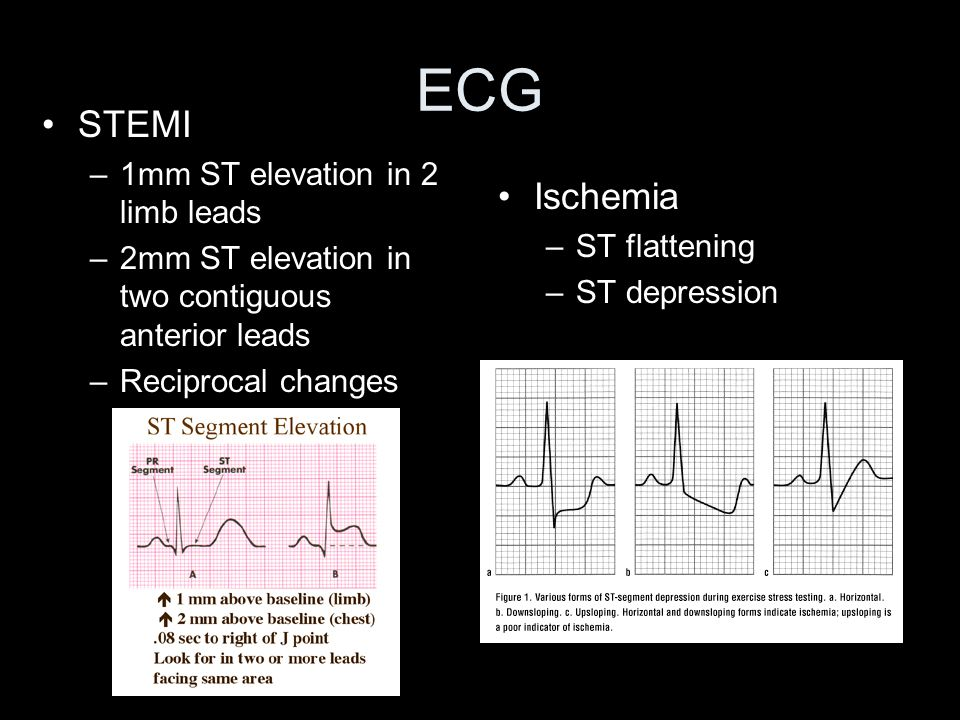ECG STEMI Ischemia 1mm ST elevation in 2 limb leads