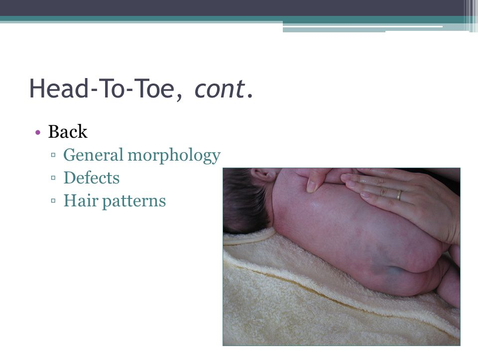 Head-To-Toe, cont. Back General morphology Defects Hair patterns