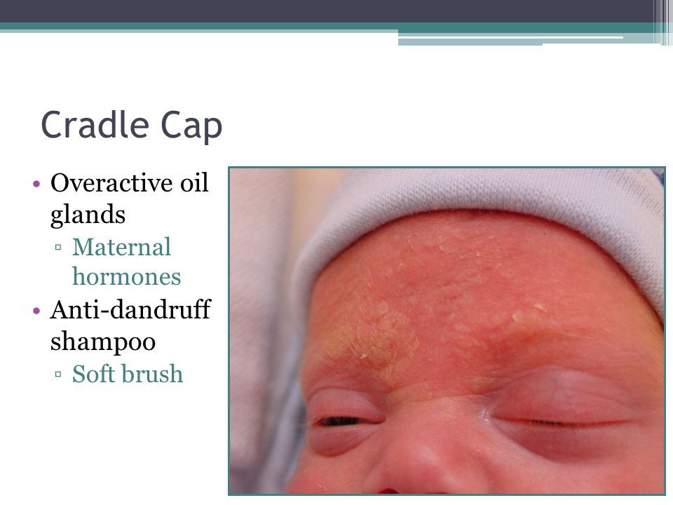 Cradle Cap Overactive oil glands Anti-dandruff shampoo