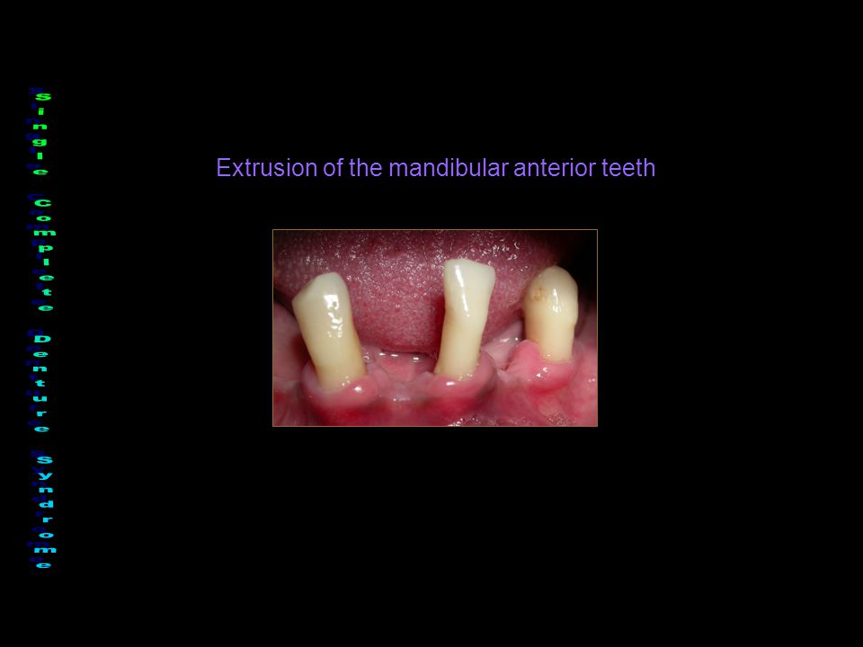 Extrusion of the mandibular anterior teeth